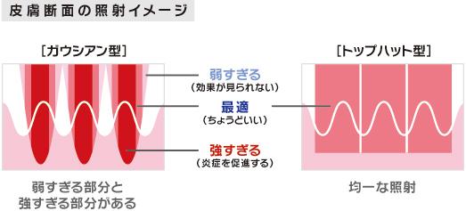 1x1.trans 肝斑治療に効果!Qスイッチヤグレーザー(メドライドC6)のスゴイ機能