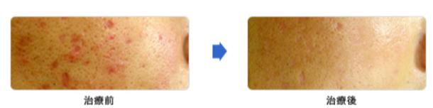 1x1.trans ニキビ痕の凸凹・赤みはレーザー治療が効果的